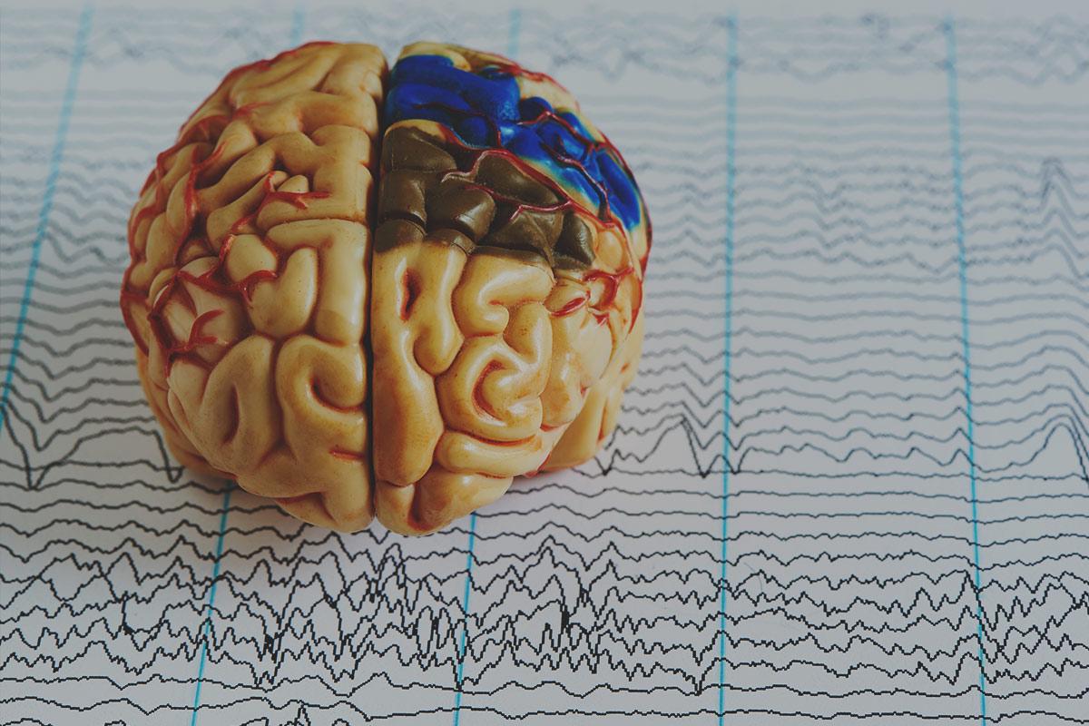 Dysfunkcja mózgu w padaczce